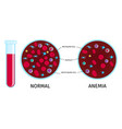 blood cells anemia chart vector image vector image