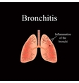 Bronchitis The anatomical structure of the human vector image vector image