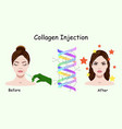 with collagen injection vector image vector image