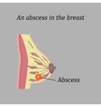 An abscess in the chest On a gray background The vector image