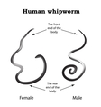 Whipworm Structure whipworm females The vector image vector image