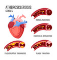 atherosclerosis stages normal functions vector image