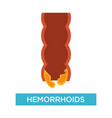 external and internal hemorrhoids with rectum vector image vector image