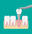 installation of the dental implant vector image