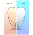 Cartoon teeth before and after whitening vector image