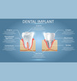 human tooth and dental implant educational vector image vector image