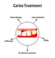 caries treatment bad breath halitosis the vector image vector image