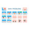 skin problem hygiene infographic damaged skin vector image