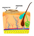the structure of keratoma keratosis the vector image vector image
