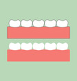 healthy teeth on gum for dental care vector image vector image