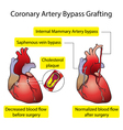 Vessels of the heart bypass surgery vector image vector image
