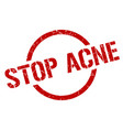 stop acne stamp vector image