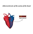 Atherosclerosis of the arteries of the heart vector image vector image