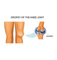 hydrarthrosis of the knee joint vector image vector image
