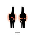 arthritis and knee joint icon vector image