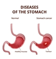 Anatomy of the human stomach vector image vector image