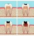 Dental caries stages vector image