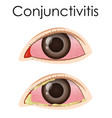 diagram showing conjunctivitis in human vector image vector image