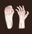 hand leg arthritis rheumatoid medicine education v