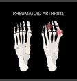 rheumatoid arthritis leg medicine education