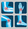 Human joints with pain rings arthritis and