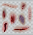 realistic wounds scars surgical stitches and vector image vector image