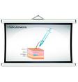 Subcutaneons injection on human skin vector image
