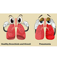 Diagram showing healthy and pneumonia lungs vector image