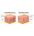 Diagram showing young and aged skin vector image vector image