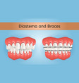 diastema and braces with crossbite teeth 3d vector image