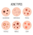 creative types of acne vector image