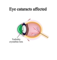 The structure of the eye Eye cataracts affected vector image vector image
