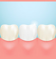 healthy tooth teeth whitening isolated on a vector image