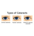 types of cataracts vector image