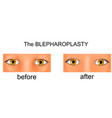 plastic surgery of the eyelids vector image vector image
