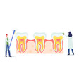 tiny dentists characters checking huge tooth for vector image vector image