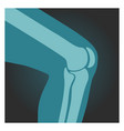 x-ray shot knee human body bones leg vector image vector image