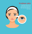woman face problem eye black circles vector image