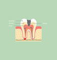 decay tooth anatomy structure vector image vector image