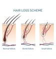 hair loss scheme vector image