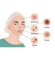 acne types cosmetology vector image