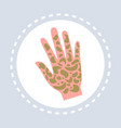 psoriasis shin disease human palm icon healthcare vector image vector image