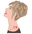shingles on a woman shoulder varicella zoster vector image vector image