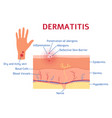 dermatitis graphic diagram or scheme flat style vector image vector image