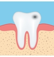 Human tooth with caries vector image vector image