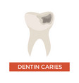 dentin caries dental care tooth damage hole vector image vector image