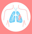 icon of lung disease hit vector image vector image