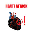 heart myocardial infarction vector image vector image