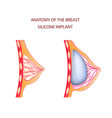 anatomy of breast silicone implant vector image