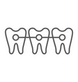 braces thin line icon dentist and dental teeth vector image vector image
